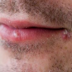 How To Treat A Cold Sore Quickly Check more at http://www.healthyandsmooth.com/cold-sore/how-to-treat-a-cold-sore-quickly/