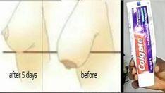 Diş Macunu ile Göğüslerinizi 5 Günde Dikleştirin | Hatunzade.Com Fitness Workouts, Body Challenge, Loose Weight, Body Weight, Natural Solutions, Beauty Routines, Skincare Routine, Natural Healing, Hair And Nails