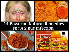 14 Powerful Natural Remedies For A Sinus Infection #weightlossfast