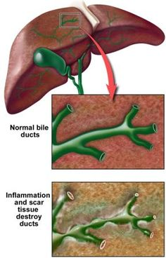 Acute cholangitis – Causes, Symptoms, Diagnosis, Treatment and Ongoing care - An ascending bacterial infection of the bile duct system occurring in the context of a partial or complete obstruction of the biliary tree, most commonly caused by gallstones  Read more: http://health.tipsdiscover.com/acute-cholangitis-causes-symptoms-diagnosis-treatment-and-ongoing-care/#ixzz2YXGaKqOd