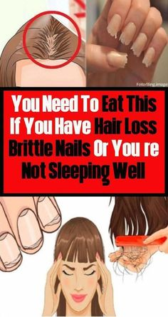 You need to eat this if you have a hair loss, a Brittle Nails or a Sleeping Well #HowMuchHairLossIsNormal #BestOilForHairLoss #BestHairLossShampoo Argan Oil For Hair Loss, Best Hair Loss Shampoo, Biotin For Hair Loss, Hair Shampoo, Biotin Hair, Baby Hair Loss, Hair Loss Cure, Hair Loss Remedies, Normal Hair Loss