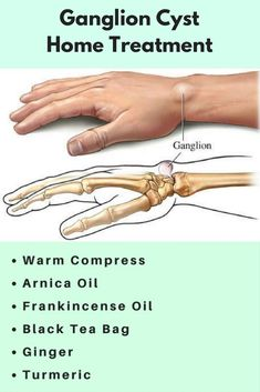 How To Get Rid Of Ganglion Cyst At Home #homeremedies #cyst #lump