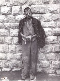 "This battered inmate was photographed by the SS guards in the Mauthausen concentration camp. Severe beatings were routine as part of the camp ""discipline."" More often than not, the victims perished."