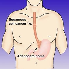Did you know that there are two major types of esophageal cancer? Adenocarinoma is most common in the U.S. and other western countries and usually found in the lower parts of the esophagus. Squamous cell carcinoma is more common internationally and usually found in the upper to middle parts of the esophagus.  #EsophagealCancerAwareness #EsophagealCancer #AllPeriwinkleEverything