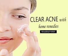 Clear Acne off Your Face with Home Remedies