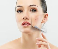 Sumi has more than ten years of experience on Skincare therapy like herbal facial in mountain view and cupertino.