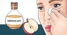 Zklidňuje spáleniny: Jablečný ocet zmírní bolesti a nepohodlí způsobené spálením od slunce tím, že reguluje hladiny pH pokožky a neutralizuje pálení. Stařecké skvrny a jizvy: Jablečný ocet může snížit pigmentaci a zesvětlit kůži, léčit jizvy a stařecké skvrny. Vrásky: pravidelnou aplikací jablečného octa na Vaši pokožku zabráníte vzniku vrásek. Bradavice: aplikujte trochu jablečného octa a …