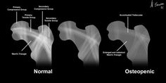There are several ways to estimate bone density changes in the adult skeleton. Ward's triangle delineates the typical changes seen in the hip, where diminution of trabeculae lead to enlargement and indistinctness of the region between the load bearing trabecular patterns.