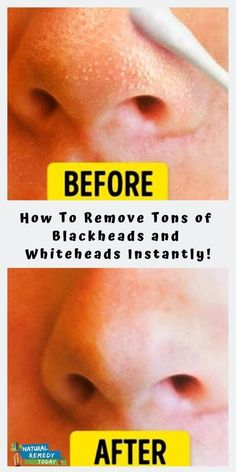 How To Remove Tons of Blackheads and Whiteheads Instantly! - Natural Remedy Today