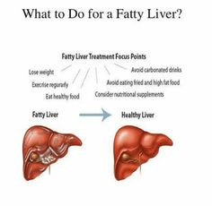 #FattyLiver #diet #loseweight 73 Fatty Liver Diet, Healthy Liver, Healthy Foods To Eat, Healthy Eating, Fatty Liver Treatment, High Fat Foods, Carbonated Drinks, Liver Disease, Nutritional Supplements