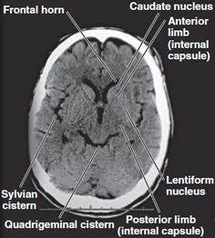 Resultado de imagem para ct brain anatomy basal ganglia