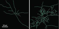 How evolution repurposed a bone gene for brain development