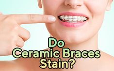 As everybody knows, technology is developin in each field of our lives. As a result of this, many new kinds of treatment appear all over the World. One of these developments is in the field of crooked teeth treatment.   https://www.thecrookedteeth.com/do-ceramic-braces-stain/