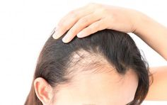 Get natural hair loss treatment for female pattern baldness. We are specialist in women pattern hair loss. Start your herbal hair regrowth journey today. Causes Of Hair Fall, Hair Loss Causes, Prevent Hair Loss, Male Baldness, Best Hair Oil, Essential Oils For Hair, Hair Loss Women, Hair Loss Remedies, Hair Loss Treatment