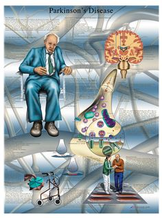 Anatomical chart: Parkinson's disease, laminated- Pinned by SOS Inc. Resources @sostherapy http://pinterest.com/sostherapy.