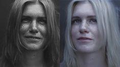 Lesões da pele em uma mulher jovem com fototipo 1.