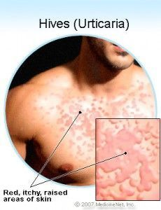1000+ images about Hives . on Pinterest | Urticaria, Home ...
