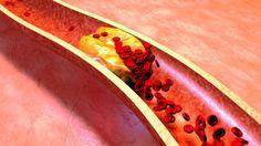 5 tünet, ami trombózisra utal, és azonnal orvoshoz kell fordulni! - Egy az Egyben