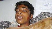 14-Jähriger Christ von  Muslimen angezündetDer Junge ist nach fünf Tagen im Krankenhaus seinen Verletzungen erlegen