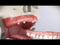 Implante Dentário - Implante de Dente 【ツ】 Dentista Sorridere