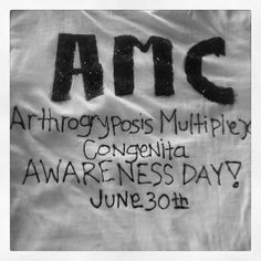Arthrogryposis awareness day June 30th. I love you Easton Munguia.... repin to support the awareness.
