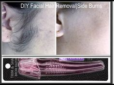 How to get rid of sideburns| DIY unwanted Facial Hair removal