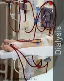 Quiz on dialysis, I got 10 out of  10 correct, very basic nursing questions.