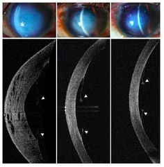 Figure 2 Slit-lamp and anterior segment optical coherence tomographic images of the right eye of a 16-year-old boy with atopy, vernal keratoconjunctivitis, and advanced keratoconus who presented with acute corneal hydrops after an episode of severe eye-rubbing.