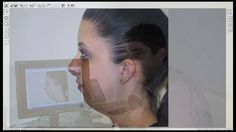 Computer Imaging for Rhinoplasty Introduction & Explanation.mov