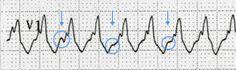 Life in the Fast Lane Ekg Interpretation, Dissociation, Medical Mnemonics, Emergency Medicine, Critical Care, Cardio, Nursing, Education, Health