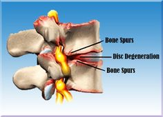 Case Study 116 - Non-Surgical Treatment Relieves Years of Sciatic and Back Pain #IllinoisBackInstitute #TotalBackPainRelief #NoDrugsOrSurgery