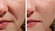 You will not believe but just 1 natural ingredient can give you your younger looking skin back. This one ingredient will prevent wrinkles and stop sagging Skin. Most of the women in the world spend a large amount of money for expensive cosmetics to prevent wrinkles. But these expensive cosmetics and beauty treatments don't give …