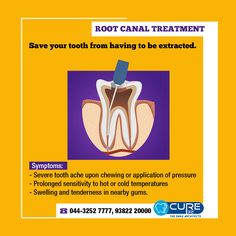 Root canal treatment,root canal specialist in navalur,ambattur,guduvanchery,velachery.Contact our root canal specialist for more details on root canal treatment. Root Canal Treatment, Dental Cosmetics, Cold Temperature, Dental Care, Save Yourself, The Cure, Dental Procedures, Dental Health