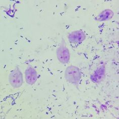 Giardia lamblia in a fecal sample for WBC