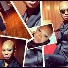Faces of Alopecia...bald is beautiful.