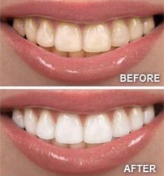 Beautiful teeth whitening results! No chemicals!
