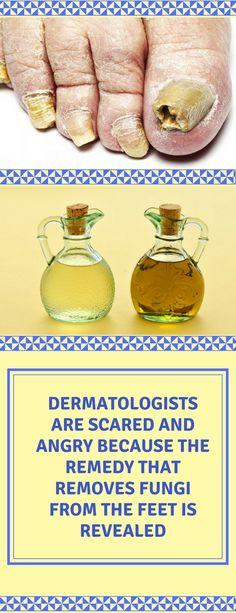 Dermatologists are scared. The natural remedy to eliminate the fungi of the feet is revealed. #Dermatologists #natural #remedy #eliminate #homemade #home #remedy #remedies #fungi #feet #treatment
