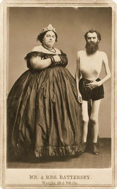 Mr. & Mrs. Battersby - weighing 69 & 700 lbs (34.5 & 350kg) - Fat Lady and Skeleton Man from the 1860s