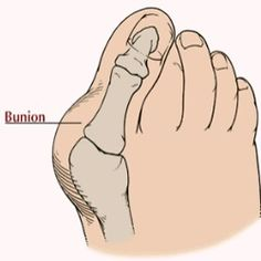 Bunions Home Remedies Treatment, Natural Home Remedy Cure, Diet & Causes Of Bunions