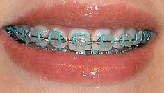 rubber band colors for braces - Recherche Google