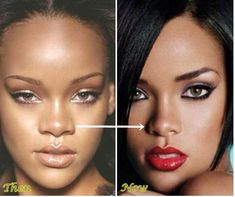 Rihanna Plastic Surgery, Nose Job Before And After