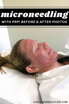 Ive had several sessions of Microneedling with PRP and Im showing before and after photos. Sharing what my acne scars looked like before, and what the procedure looks like and how long it took me to heal. Find out all about this skin smoothing treatment. Microneedling With Prp, Dermapen Microneedling, Facial Before And After, Vampire Facial, Face Care Tips, Derma Roller, Medical Spa, Ppr, Facial Treatment