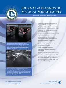 Cover image for latest issue of Journal of Diagnostic Medical Sonography