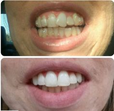 aligners can give you the radiant smile you deserve! Call us NOW to find out your options! Smile Dental, Find A Doctor, Dental Procedures, Cosmetic Dentistry, Oral Health, Whitening, How To Find Out, Amber, Hair Beauty