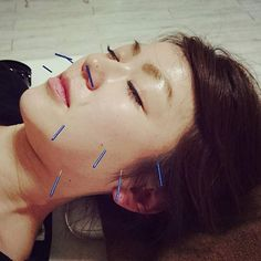 Super facial #acupuncture!