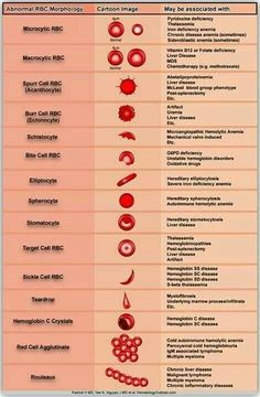 Medical Laboratory and Biomedical Science: Reporting and grading of abnormal red blood cell morphology laboratory science Medizinisches Labor, Medical Lab Technician, Medical Laboratory Scientist, Biomedical Science, Medical Technology, Medical Coding, Technology News, Technology Innovations, Technology Articles