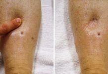 plavix ízületi fájdalom gyógyszer beteg ízületek kapszula számára