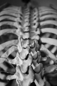 """Where all the """"good"""" stuff is housed: The lamina groove....facets, spinal ligaments, intervertebral discs, nerves and transversospinalis muscles."""