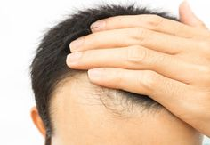 Looking for best hair loss treatment in Ahmedabad? Midas Touch is one of the best hair transplant clinic provides hair loss treatment like hair restoration, hair regrowth with latest FUT & FUE Technique. Foods For Hair Loss, Prp For Hair Loss, Biotin Hair Growth, Hair Regrowth, Hair Follicles, Vitamin H, Reverse Hair Loss, Increase Hair Growth, Hair Loss Treatment