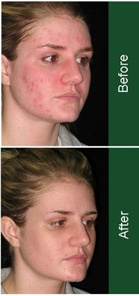 Birth Control Acne Treatment Before and After The best acne treatment theacnecode.com